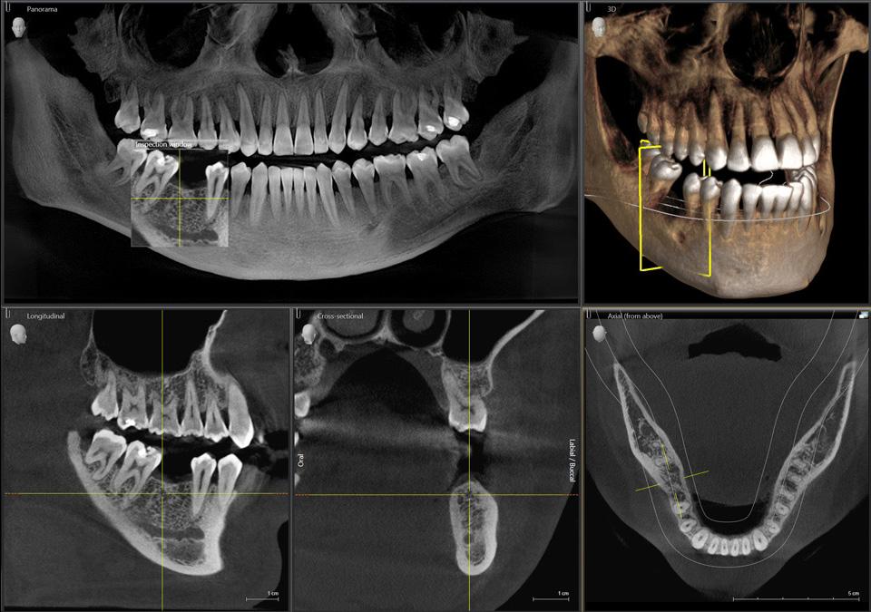 radiologia-digitale